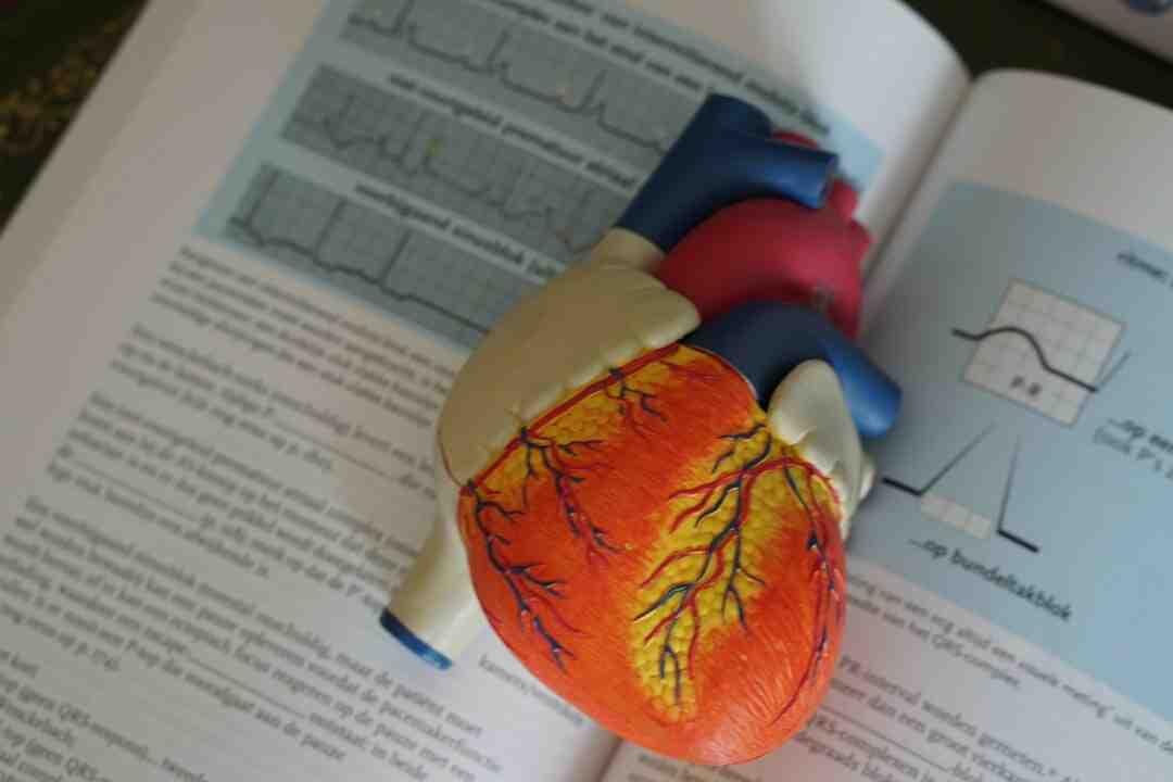 Comment s'entrainer après un infarctus